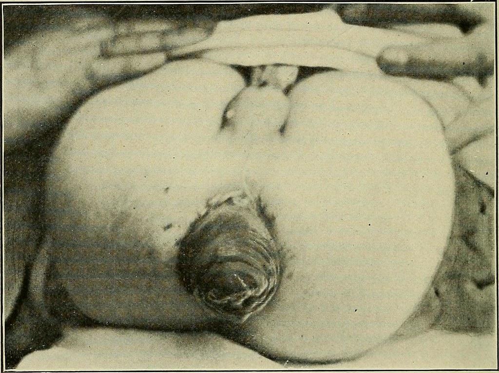 Image result for Hemorrhoids