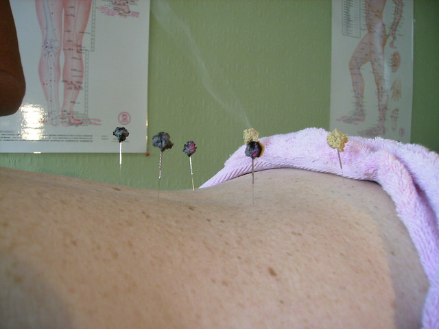 Image result for low back pain acupuncture