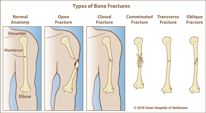 open closed and normal fracture compared