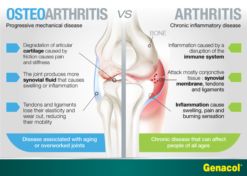causes of arthritis and best remedies in 2020