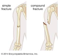 compound fracture v simple