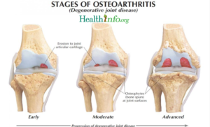 stages of arthritis and best medications 2020