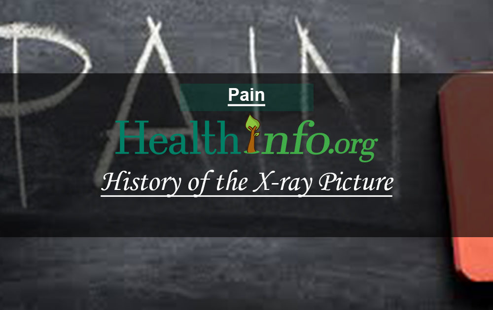 History of the X-ray Picture